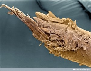 2. Split end of human hair. Image: Liz Hirst, Welcome Images. Regular trimmings to your hair and good conditioner should help to prevent this unsightly picture of a split end of a human hair.