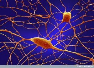 3. Purkinje neurons. Image: Annie Cavanagh, Welcome Images. Of the 100 billion neurons in your brain, Purkinje neurons are some of the largest. Among other things, these cells are the masters of motor coordination in the cerebellar cortex. Toxic exposure such as alcohol and lithium, autoimmune diseases, genetic mutations including autism and neurodegenerative diseases can negatively affect human Purkinje cells.