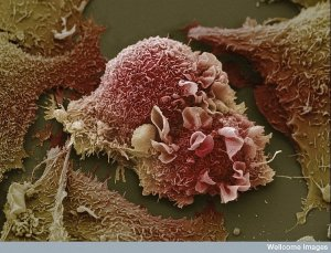 10. Lung cancer cells. Image: Anne Weston, Welcome Images. This image of warped lung cancer cells is in stark contrast to the healthy lung in the previous picture.