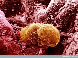15. Colored image of a 6 day old human embryo implanting. Image: Yorgos Nikas, Welcome Images. And the cycle of life begins again: this 6 day old human embryo is beginning to implant into the endometrium, the lining of the uterus.